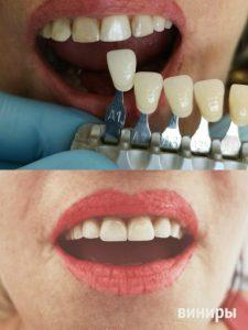 виниры стоматология Анна Перенна